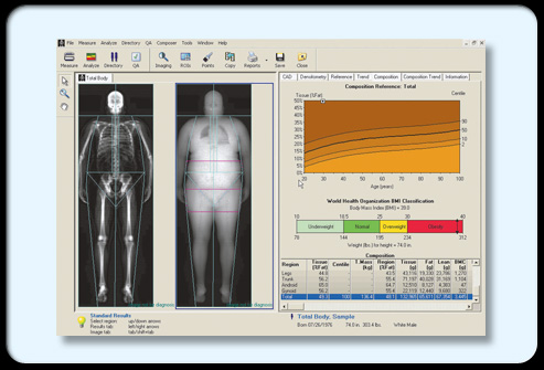 Osteoporosis s15 dxa computer scan
