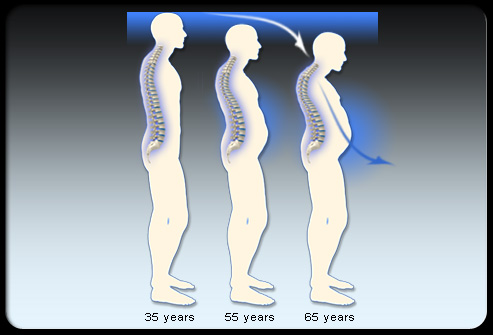 Osteoporosis s9 bone density deterioration