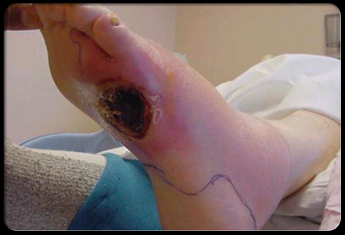 diabetes foot problems s12 ulcers