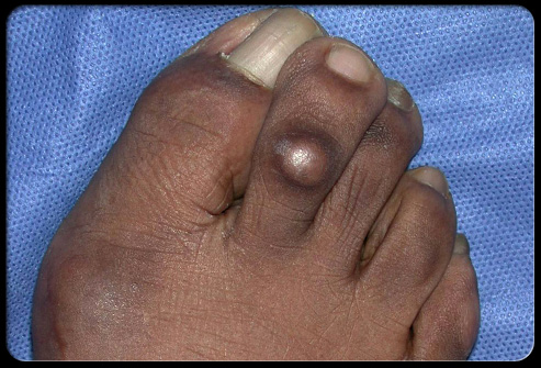 diabetes foot problems s8 corns